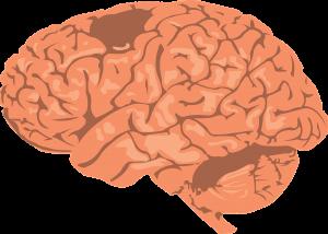Dysarthrie - Erkrankung des Gehirns